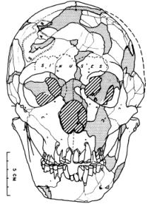 Shanidar 1 skull