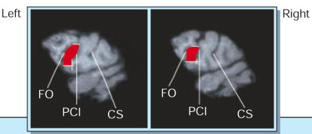 Broca's area in chimps. Note how the left side is larger than the right.