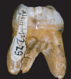 The Denisovan tooth