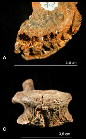 The vertebra of the Austrlaopithecus africanus with lesions