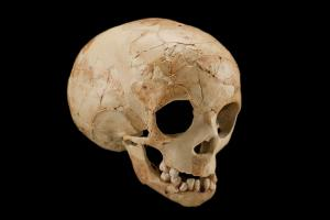 Dederiyeh 1; a Neanderthal toddler who may have been intentionally buried