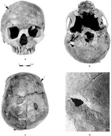 The Qafzeh 11 skull. The arrow points to the head trauma